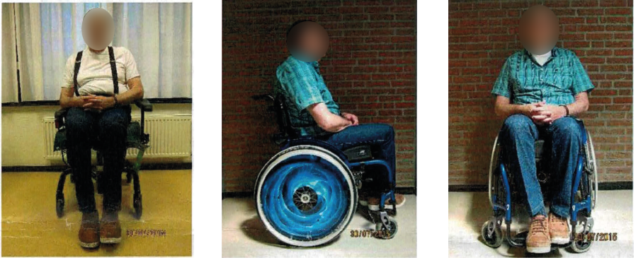 Clinical Case Vicair Active Wheelchair Cushion