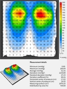 Clinical Case Vicair Pressure Map - Jay Basic