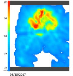 Vicair Clinical Case Wheelchair Cushion Pressure Mapping Vicair Adjuster 12