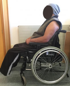 Clinical Case Vicair Wheelchair Cushion Vicair Adjuster 12